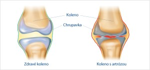 artroza_klbov_a_reumatoidna_artroza_1